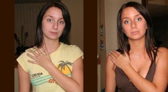 пол меланотан до и после фото полезла интернет